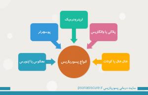 types-of-psoriasis