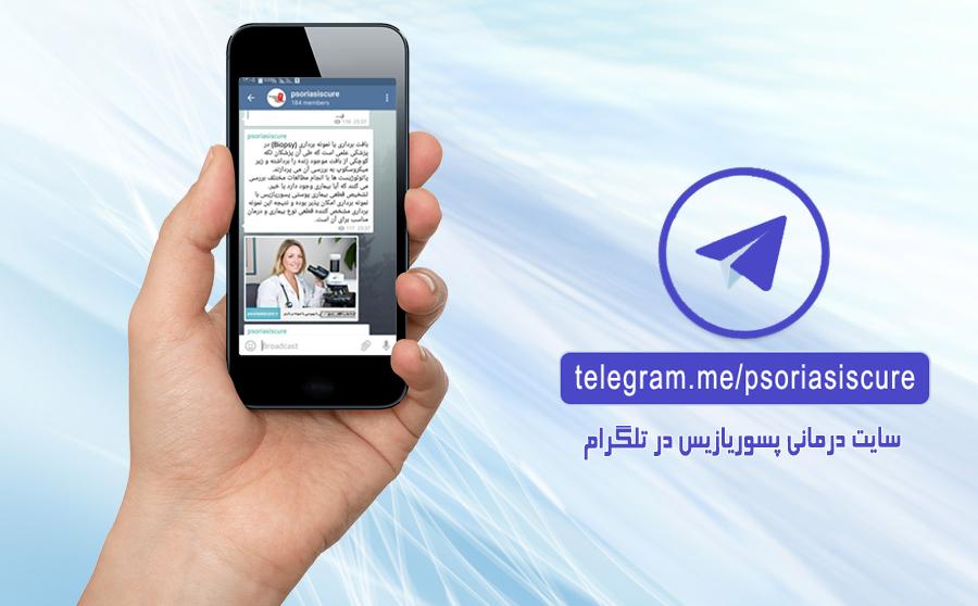 کانال رسمی سایت درمانی پسوریازیس در تلگرام