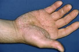 علائم و درمان پسوریازیس کف دست در بیماران پسوریازیس