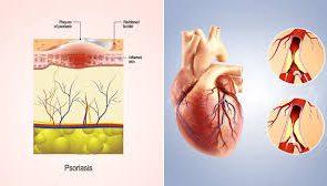 ارتباط بیماری پسوریازیس با افزایش خطر سکته قلبی