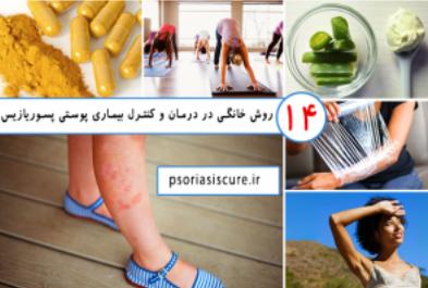 ۱۴ روش خانگی در درمان و کنترل بیماری پوستی پسوریازیس