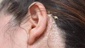 در مورد بیماری مبتلایان به پسوریازیس چگونه صحبت کنیم؟