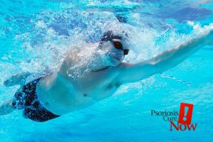 Swimming psoriasis
