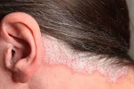 چند راهکار برای درمان پسوریازیس پوست سر
