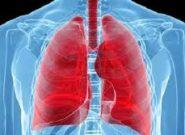 پسوریازیس چگونه میتواند بر ریهها تأثیر بگذارد؟