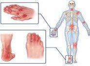 مفاصلی که در آرتریت پسوریازیس درگیر می شوند کداماند؟