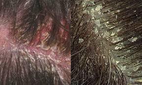 تفاوت شوره سر و پوسته ریزی پسوریازیسی