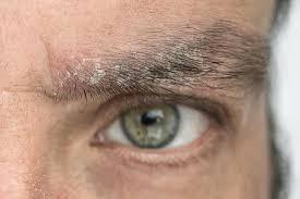 پسوریازیس شایع ترین بیماری پوستی با شیوع دو درصدی