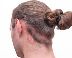 برسی اثرات درمانهای موضعی برای پسوریازیس پوست سر