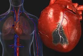 کمک برخی از داروهای پسوریازیس به پیشگیری از بیماری های قلب