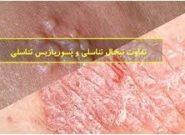 تفاوت تبخال تناسلی و پسوریازیس تناسلی