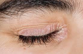 درماتیت پلک ناشی از درماتیت آتوپیک (اگزما) یا پسوریازیس