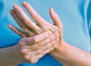درمان های جایگزین در مراحل اولیه آرتریت پسوریاتیک