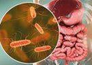 پسوریازیس و عدم تعادل در بافت میکروبی روده